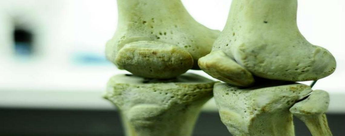 Las células madre pueden regenerar huesos dañados  